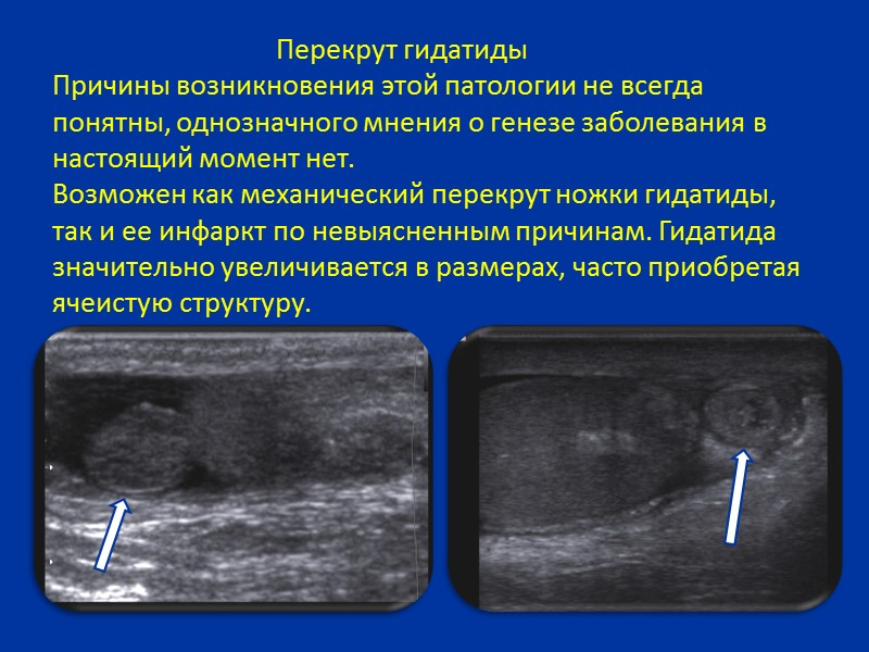 Острые заболевания органов мошонки занимают первое место среди заболеваний наружных половых органов мальчиков. Пациенты